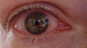 глазные капли от глистов