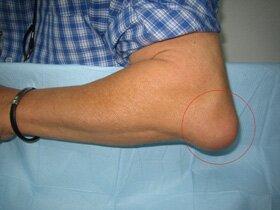 Изображение - Лечение бурсита коленного сустава народными средствами отзывы bursitis-codo1-p